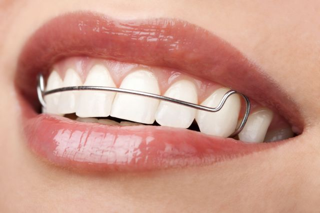 Wear Your Retainers After Houston Braces Treatment