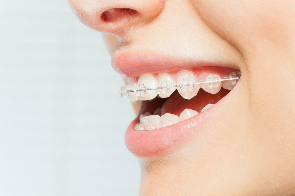 Centra Dental in South Houston Offers Ceramic Houston Braces For Adults