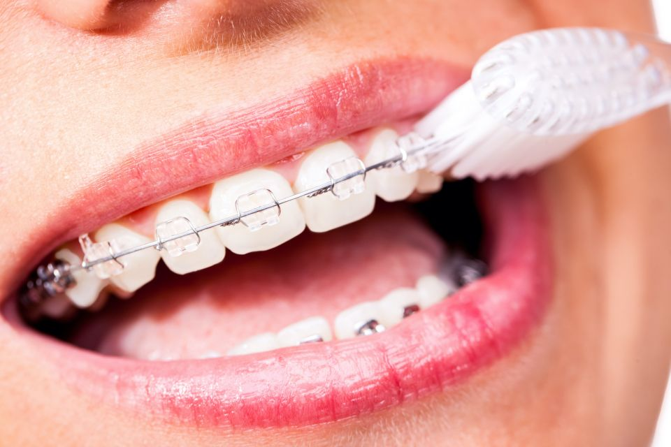 How to Keep Your Teeth Clean and Healthy While Wearing Houston Braces