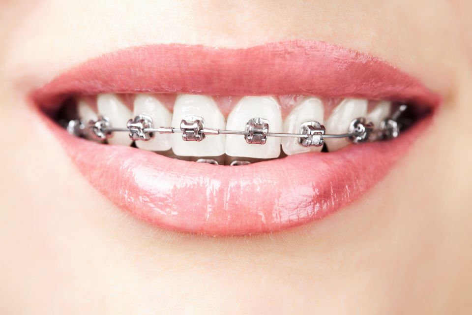 How To Get The Most Out Of Metal Houston Braces