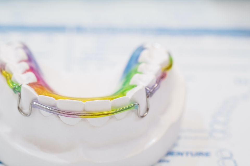 Pros and Cons of Traditional Orthodontic Retainers After Houston Braces