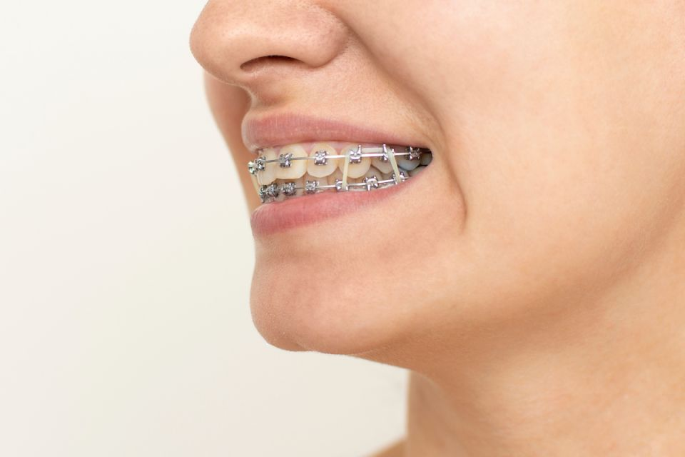 Do All Houston Braces Patients Have To Wear Rubber Bands?