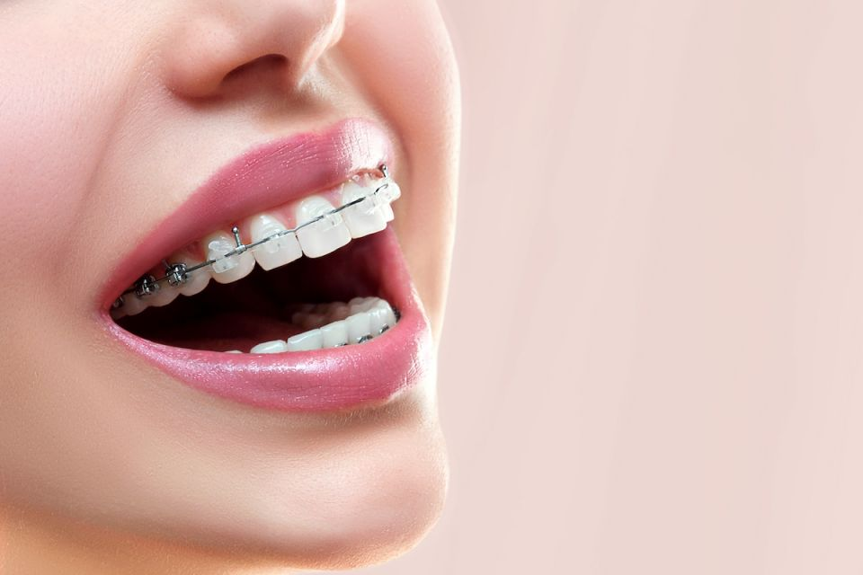 Ceramic Houston Braces Versus Metal Dental Braces