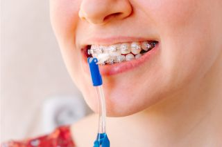 Maintaining Your Oral Hygiene While Undergoing Houston Braces Treatment