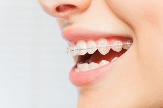 Ceramic Houston Braces for Adults