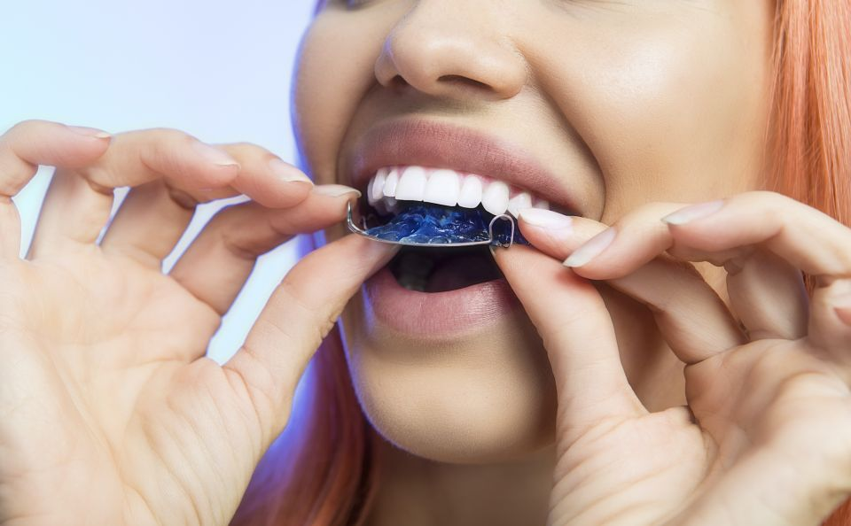 Retainers After Houston Braces - Different Types and Wearing Guidelines