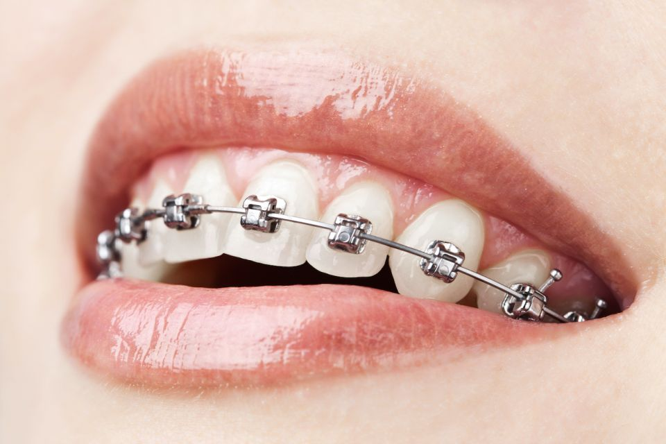 Tips For A Smooth Houston Braces Experience