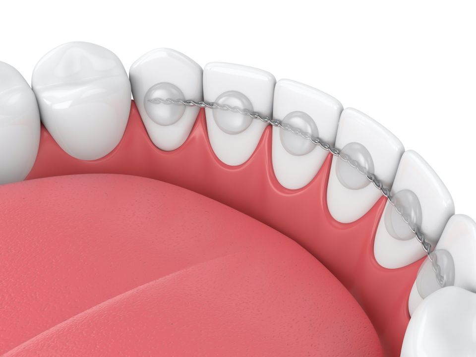 Pros and Cons of Bonded Orthodontic Retainers After Houston Braces