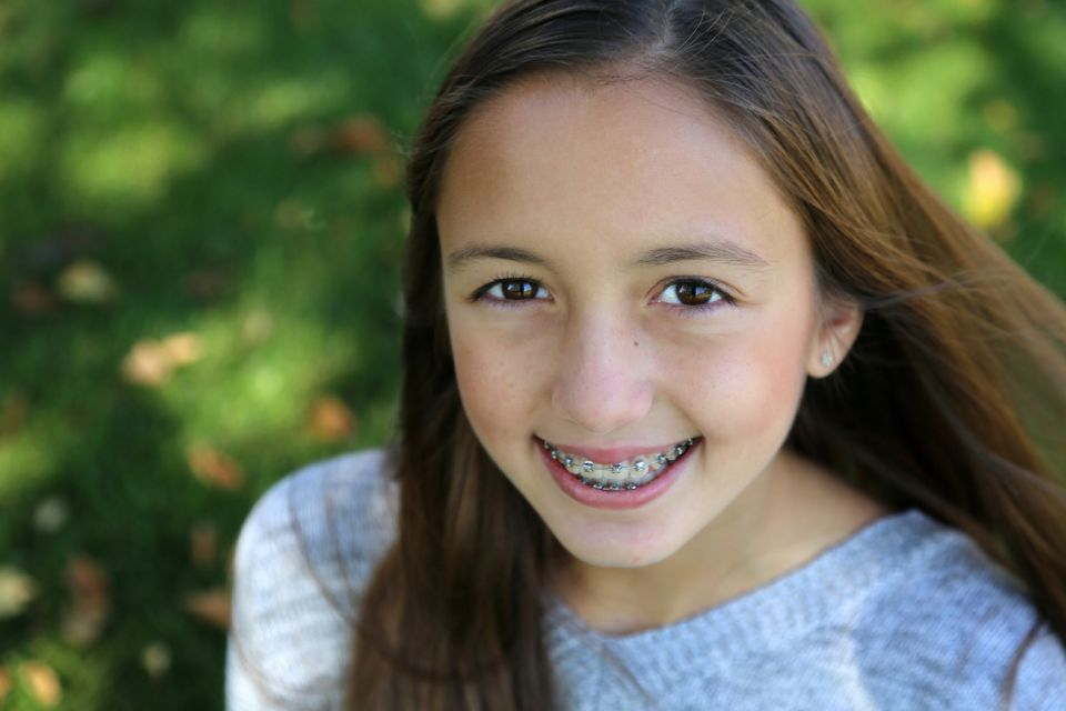 Myths and Facts About Houston Braces