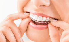 Invisalign Treatment for Adults