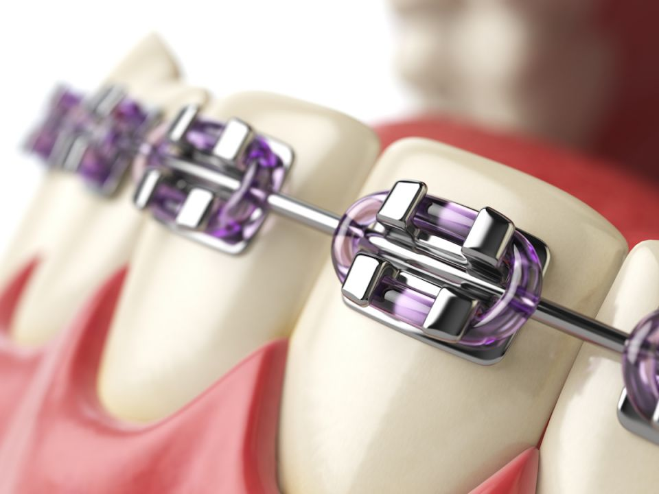 Which Is Better: Ceramic Or Metal Houston Braces?