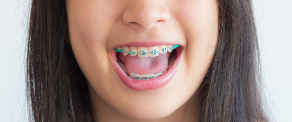 Houston Metal Braces For Children