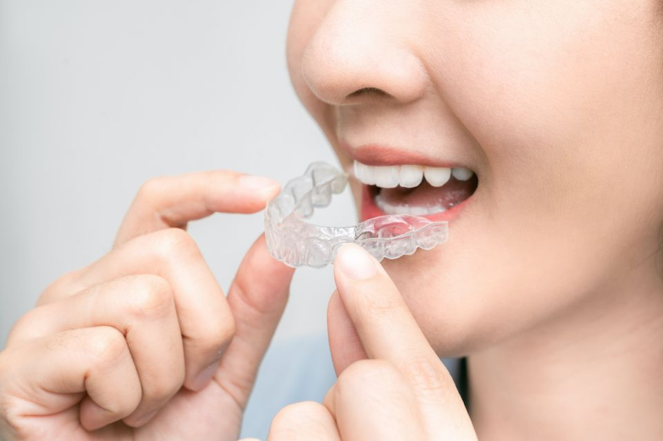 How South Houston Invisalign Works